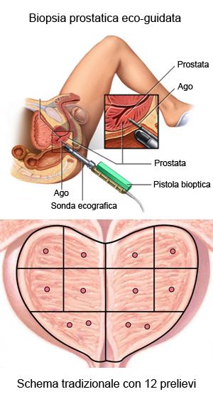 RM paramétrica de la próstata