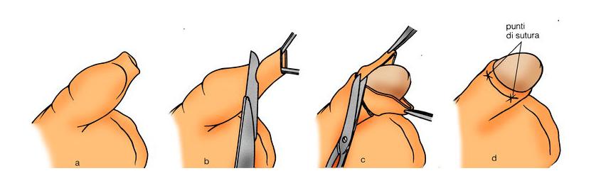erezione dopo la circoncisione)