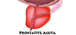prostata consistenza parenchimatosani