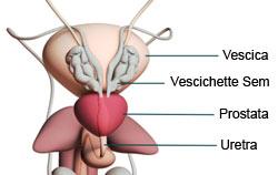 il psa nei pazienti con asportazione radicale della prostata